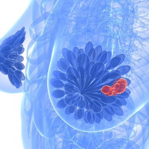 Αναψυκτικά: Πόσο αυξάνουν τον κίνδυνο καρκίνου του μαστού